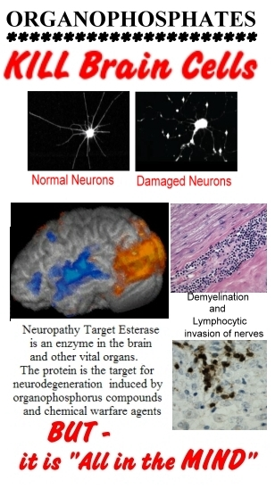 Organophosphates can seriously damage the brain